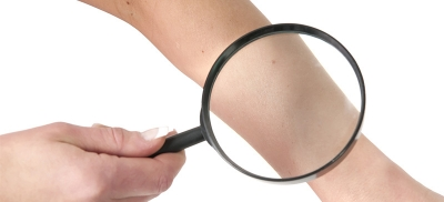 Magnifier on Skin
